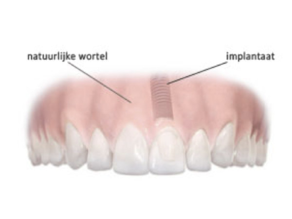 Smilez Implantologie